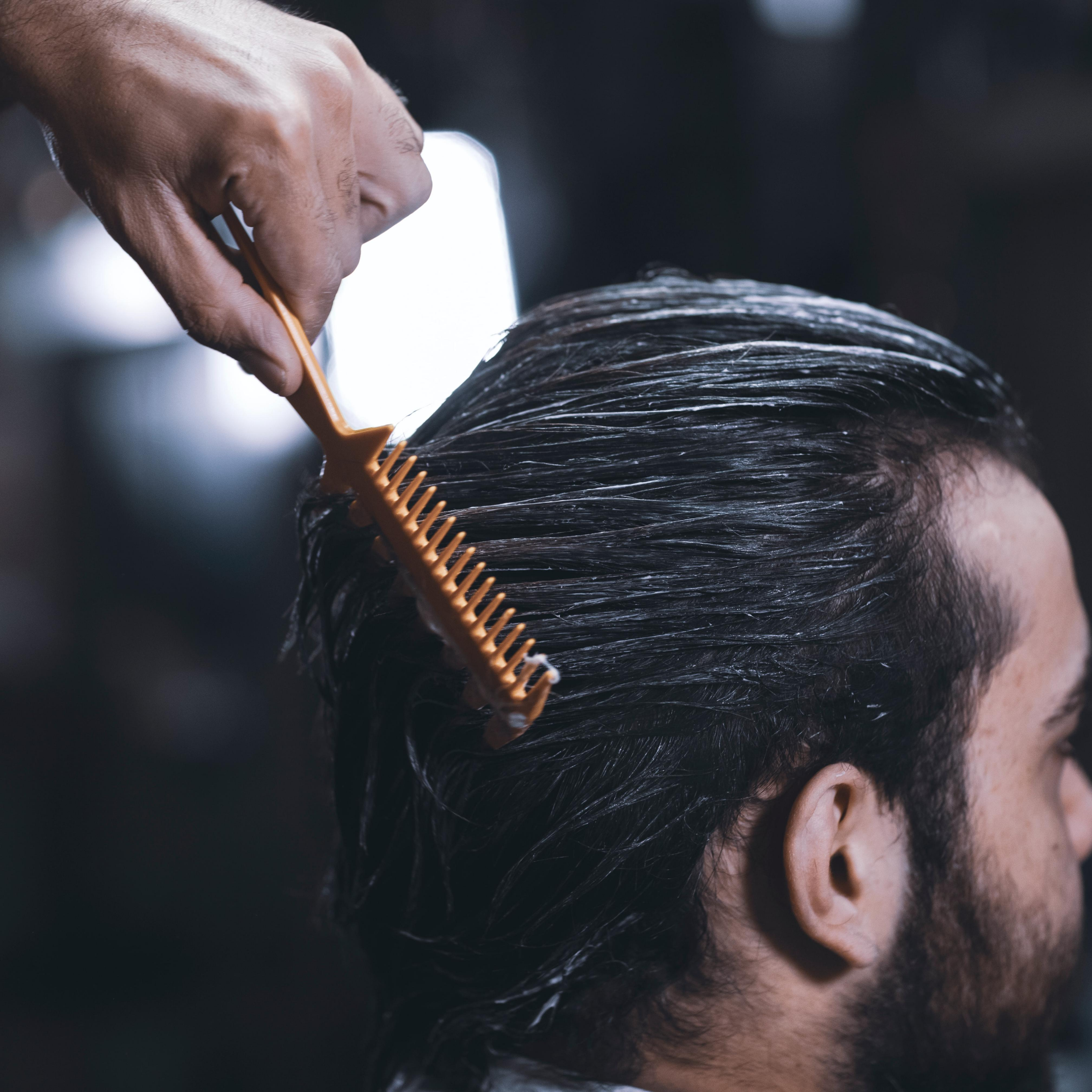 Hair Transplants vs Hair Loss Treatments: Which is the best choice?