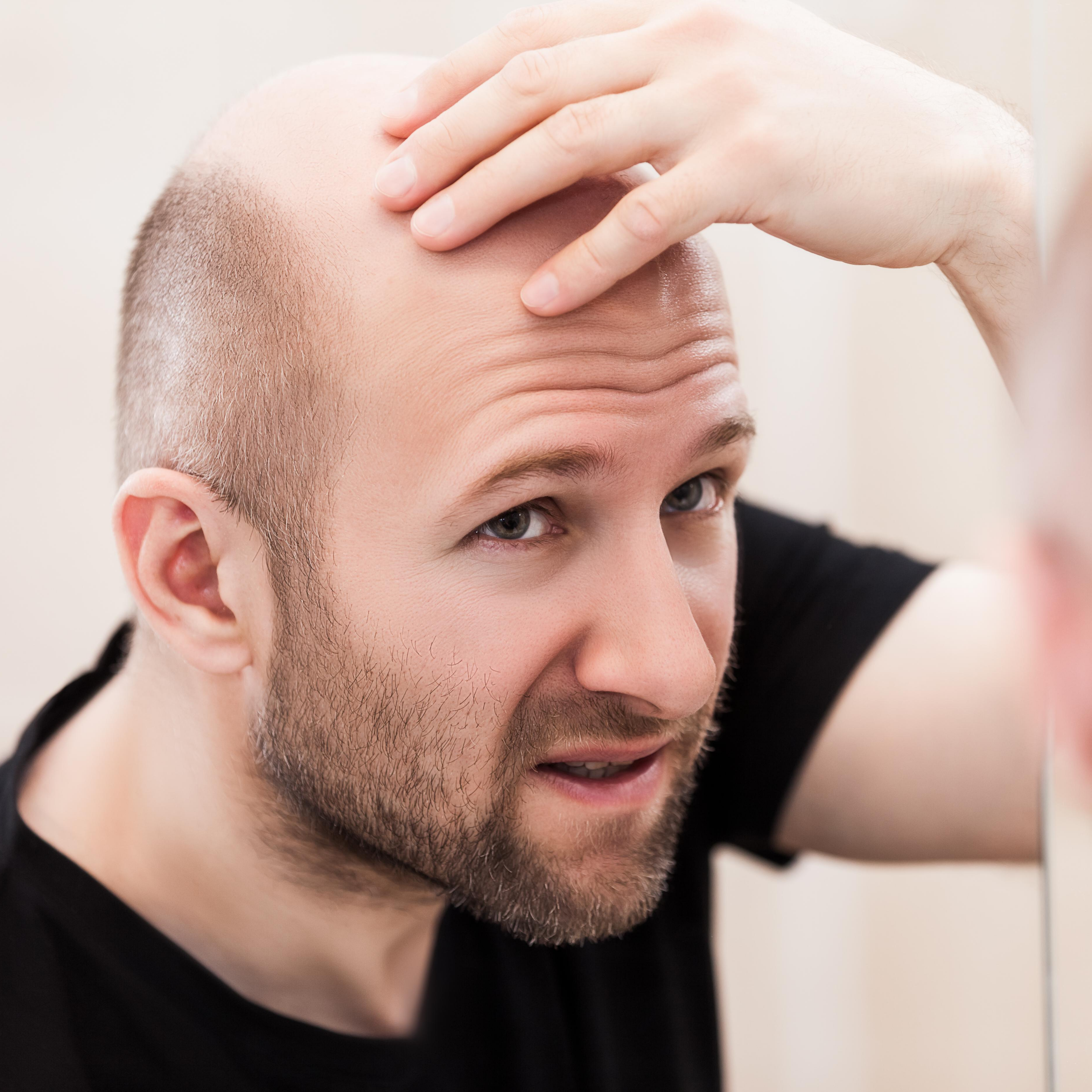 3 Myths of Balding, Debunked + Finding Real Solutions